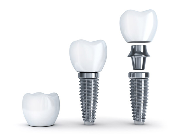 Diagram of dental implant with post at Revive Dental and Implant Center in Charleston, WV.