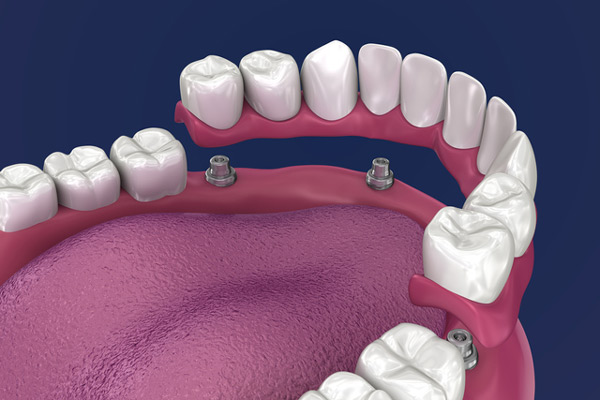 3D rendering of overdentures in a mouth at Revive Dental and Implant Center in Charleston, West Virginia